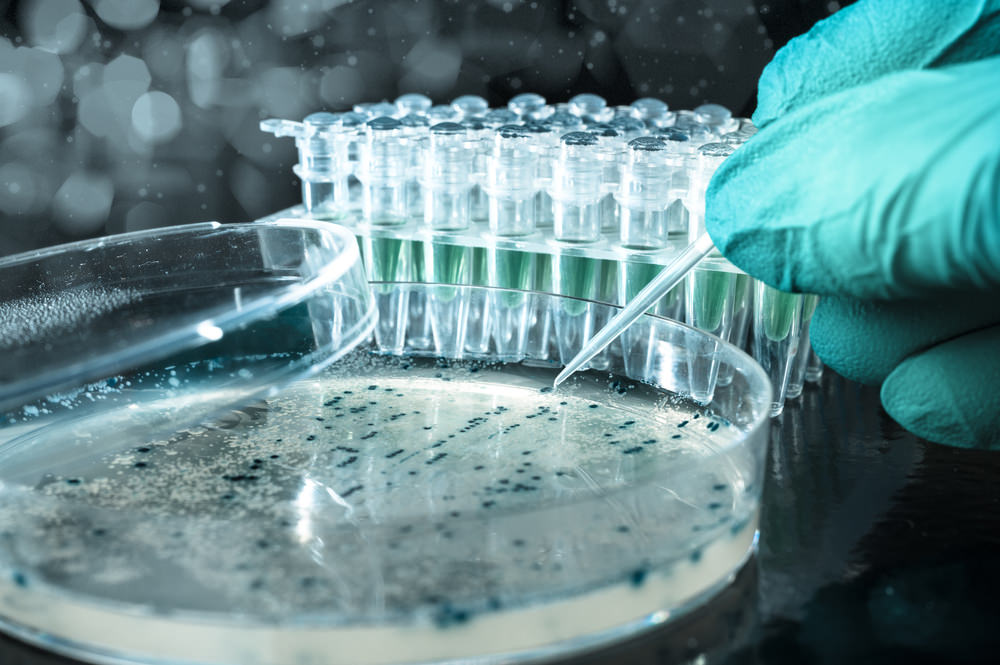 ARCA biopharma Should Be On Your Radar After Latest Advancements