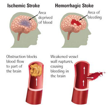 Does Cell Therapy Hold The Key To Treating Stroke ...