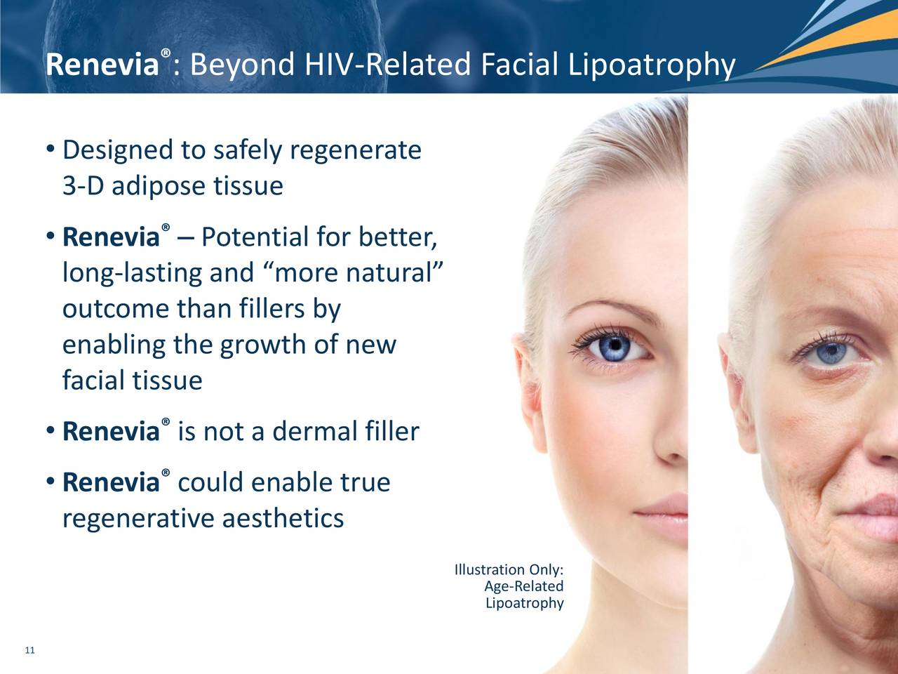 Lipoatrophy of facial