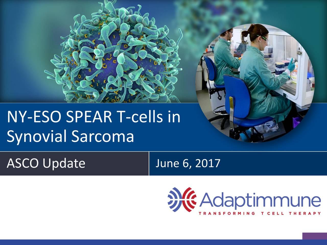 Synovial Sarcoma ASCO Update June 6, 2017